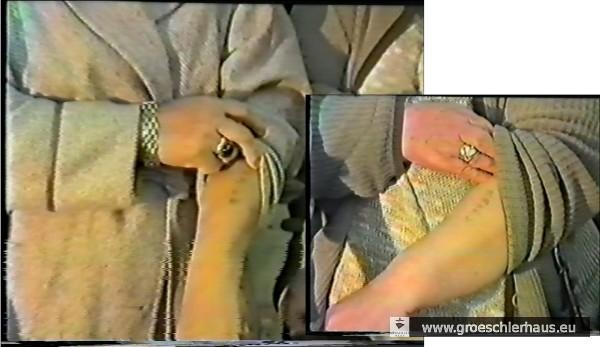 Die Auschwitz-Tätowierungen von Therese Hauer und Z-3487 auf dem Arm von Margot Schwarz geb. Franz (Still aus dem Video von 1982)